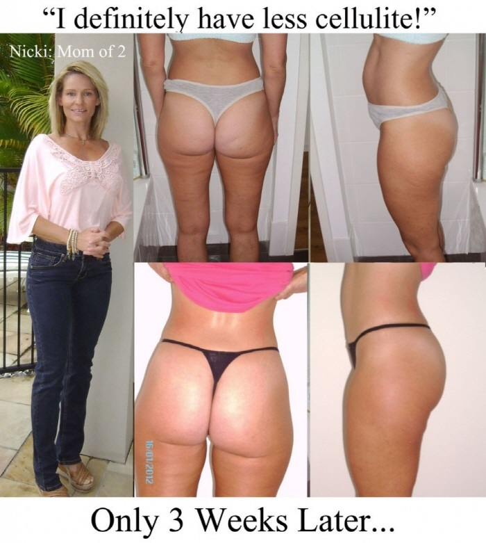 Truth About Cellulite Review Before and After